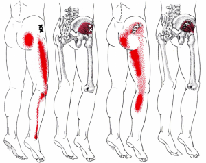 Gluteus minimus trigger point