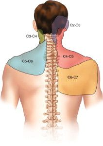 Cervical spine referral patterns