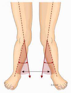 knee-valgus