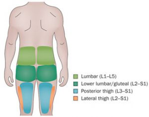 Lumbar facet radiation