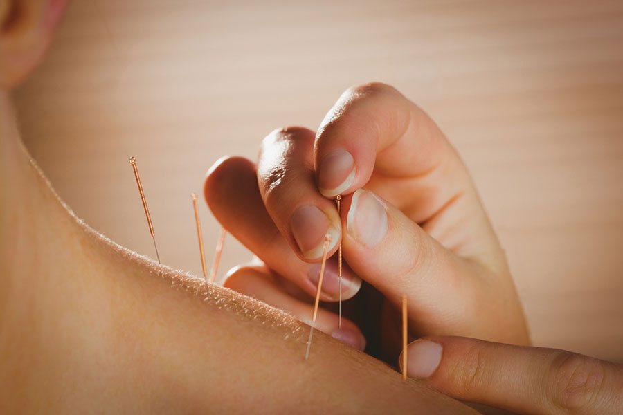 acupuncture-ascot